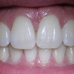 Kako do belih zob?